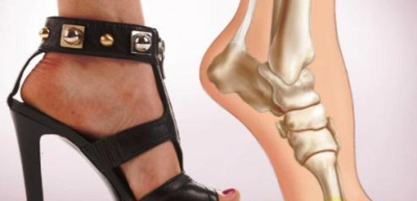 6 طرق للتغلب على ألم القدمين بعد ارتداء الكعب العالى