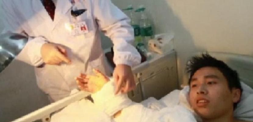 جراحة ناجحة بالصين لإعادة تثبيت يد مبتورة لطفل فى السابعة
