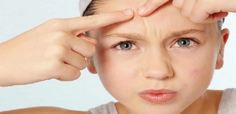 لماذا تظهر بعض البثور على بشرتكِ فجأة؟