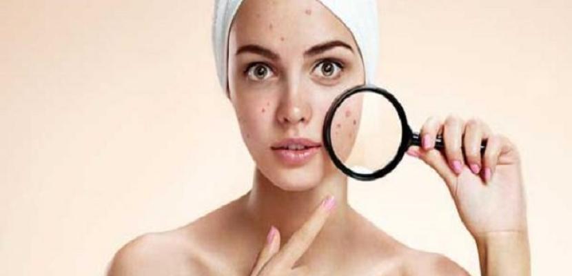 وصفات طبيعية لجمال البشرة وعلاج حب الشباب